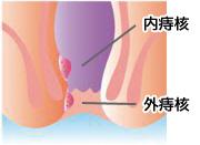 痔核(いぼ痔)のイラスト図