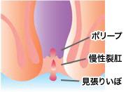 裂肛(きれじ)のイラスト図